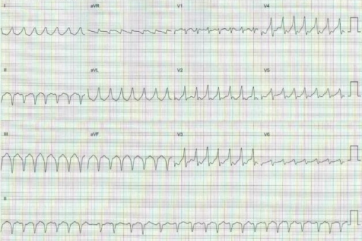 Twelve-lead ECG showing preexcitated atrial fibrillation