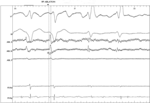 Recordings at the site of successful ablation. Earliest ventricular activation precedes the onset of QRS by 36 ms in the distal bipolar recordings. ABL, ablation catheter;  RV, right ventricle