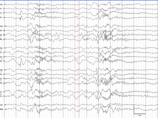 This is an EEG of a 8-year-old boy with Lennox-Gaustaut syndrome demonstrating paroxysmal fast activity during sleep. There were no observable clinical changes noted during the discharge.