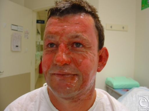 "Superficial partial-thickness facial burns from the same petrol explosion displaying the unburned ""crow's feet"" around the eyes. This gives an indication of the speed and effectiveness of the ""blink"" reflex in protecting the eyes in these situations."
