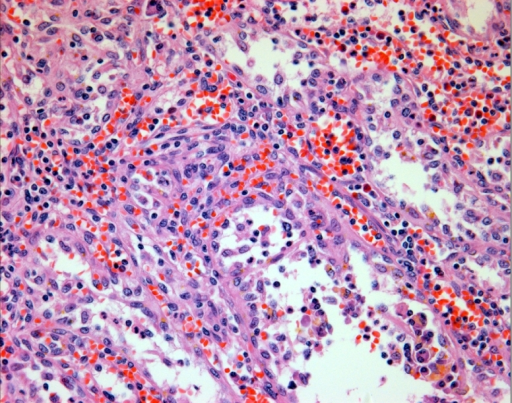 Anastomosing vascular channels with a pseudopapillary pattern and exfoliated cells present in the luminal spaces of the vascular channels (H & E stain, × 400).