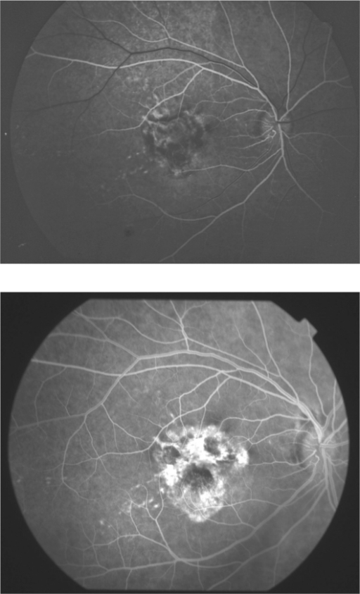 Case 6. Choroidal neovascularization without photodynamic therapy treatment. A) On presentation. B) At the end of 134-month follow-up period. There is an apparent increase of choroidal neovascularization.