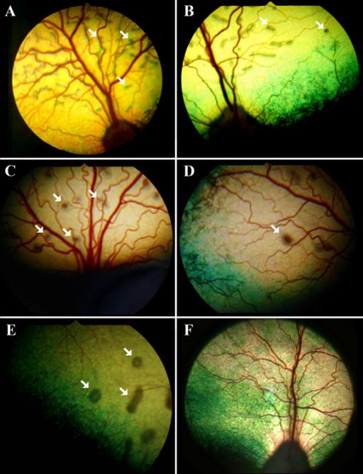 Multifocal retinal dys...