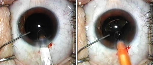 (A) Following irrigation/aspiration of the cortex, the anterior chamber is irrigated with balanced salt solution (BSS) through a side port using a 27-gauge Amvisc Plus needle before intraocular lens implantation. (B) Insertion of the intraocular lens into the capsular bag while the anterior chamber is maintained with BSS.