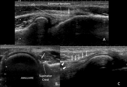 a Long axis ultrasound image of the anterolateral surface of the extended elbow at the level of the lateral humeral epicondyle demonstrating a clear separation of the proximal portion of the LCL from the overlying extensor tendons and the echogenic line between these two structures (arrow) in a 25-year-old female control. b Short axis ultrasound image at postero-lateral elbow at the level of the radial head of 29-year-old male volunteer also showing the annular ligament and its posterior attachment (arrow) at the supinator's crest. c Oblique long axis image of the posterolateral elbow at the level of the radial head of the same subject demonstrating the LUCL and its insertion (arrows) to the supinator tubercle of the ulna (arrowheads). Note the hyperechogenicity of the surrounding soft tissues facilitating the identification of this structure