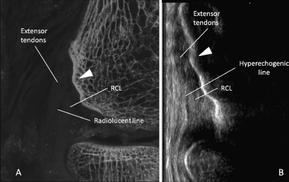 Demonstration of the variations of the osseous surface of the lateral epicondyle in a 58-year-old male specimen. a High-definition radiography demonstrating the anterior tubercle (arrowhead), note the radiolucent line between the tendons and the proximal part of the LCL. b Corresponding long axis anterolateral ultrasound image of the elbow at the level of the lateral epicondyle demonstrating the anterior tubercle (arrowhead). Note that the radiolucent line in (A) appears hyperechogenic on ultrasound