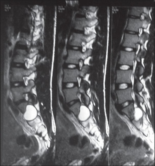 MRI T2W, done in 2003 shows a small cystic lesion of sa ... Sacral Canal Cyst