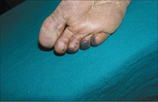 residual changes in toes after 6 weeks open i