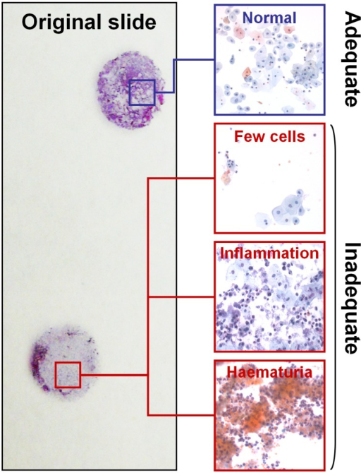 Selection of the cytology specimens.Only cases with >5,000 well-preserved and well-visualized urothelial cells (as observed in 10 fields at 4x magnification) were selected. Cases largely constituted by red blood cells or inflammatory cells were excluded.