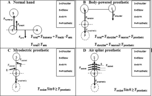 Comparison of free body diagram from three different types of prostheses; B. Body-powered prosthetic, C. Myoelectric prosthetic, D. Air splint prosthetic and A. normal human hand. (S= shoulder, E= elbow, A= arm and P= prosthetic). The forces direction react referring to the x-axis and y-axis.