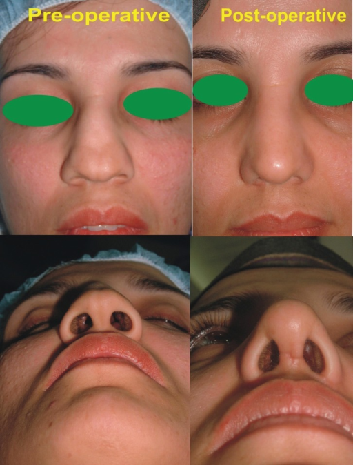 A young female with depressed nasal dorsum