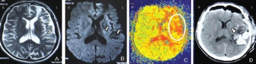 MRI and CT images of a 47-year-old male patient with intracerebral hemorrhage following superficial temporal artery-middle cerebral artery (STA-MCA) bypass.An ischemic lesion appeared in the left frontotemporal lobe (white arrow) on preoperative MRI (A, B). The time to peak cerebral blood flow velocity in the frontotemporal lobe was delayed compared with the contralateral side (C). CT scan demonstrated left frontotemporal hemorrhage (white arrow) on the first day after STA-MCA bypass (D). L: Left; R: right.