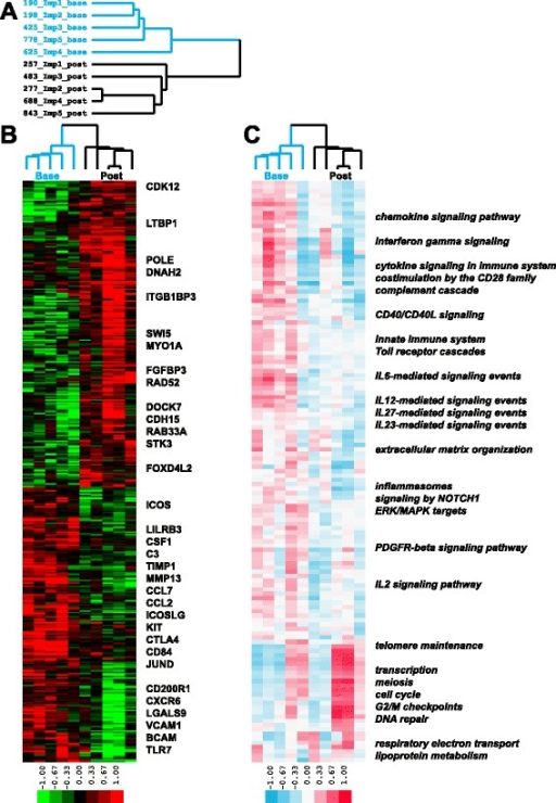 Gene and pathway signatures in abatacept improvers. a Blue identifiers designate baseline and black identifiers designate post-treatment samples; b 398 genes showed significant differential expression (p < 0.05) between baseline and post-treatment improver samples during the course of abatacept treatment; c 133 pathways were significantly differentially expressed in improvers (FDR <10 %). Color bar here and on subsequent figures represents single sample Gene Set Enrichment Analysis Normalized Enrichment Score (ssGSEA NES)