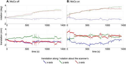 Motion plots for the GRE comparison scans.The plots show the translations and rotations recorded during the GRE scans (Fig 4) without (A) and with (B) motion correction. For this plot, the data delivered by the MPT tracking system were converted to scanner coordinates.