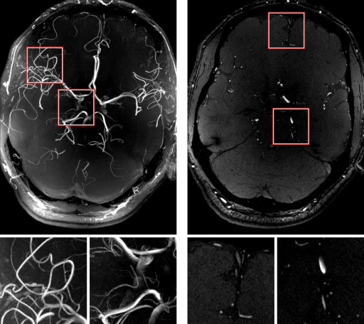A maximum intensity projection (MIP) of the highest resolution time-of-flight scan (left) and one slice of the dataset (right).This 0.2 mm isotropic dataset shows five to seven bifurcations of the middle cerebral artery for the vessels in the FoV which covers only 2.8cm through-plane and does not include the full brain's vessel geometry. Magnifications of the marked regions are shown below. See S3 Video for full data set.