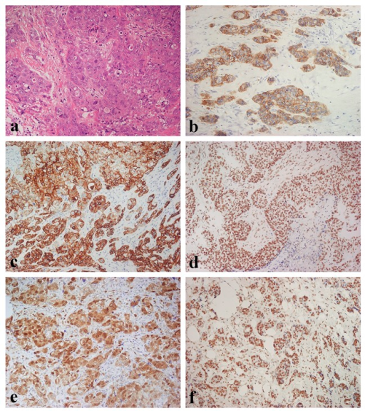 Morphologic and immunohistochemical features of Triple Negative Breast Cancer.(A) Haematoxylin & Eosin stain illustrates a Triple Negative variant with features of high grade invasive ductal carcinoma (original magnification 100X); (B) Immunohistochemistry for EGFR displaying diffuse and moderate membranous and membranous-cytoplasmic immunoreactivity (original magnification 100X); (C) Immunohistochemistry for CK5/6 showing diffuse and intense cytoplasmic immunoreactivity (original magnification 100X); (D) Immunohistochemistry for p- AKT showing diffuse and intense nuclear immunoreactivity (original magnification 100X); (E) Immunohistochemistry for p-p44/42 MAPK displaying diffuse and intense nuclear-cytoplasmic immunoreactivity (original magnification 100X); (F) Immunostaining for PTEN showing diffuse and intense nuclear immunoreactivity (original magnification 100X).