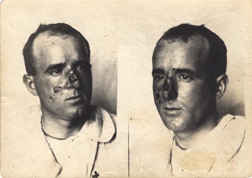 <p>Black and white photograph of injured soldier with facial wounds posing at two different angles. Patient's right cheek has a bullet wound.</p>