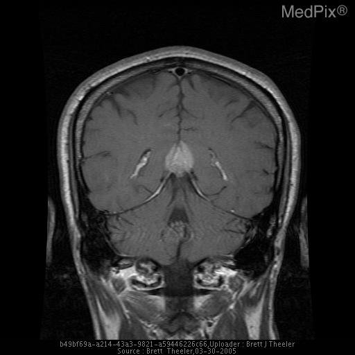 Homogenenous, hyperintense mass on the T1WI.  Note the extension of the mass into the tentorium, extension into the collicular plate, and the anterior displacement of the diencephalon and corpus callosum on the sagittal image.  Surprisingly, this mass has not appear to have significantly blocked the aqueduct of Sylvius..