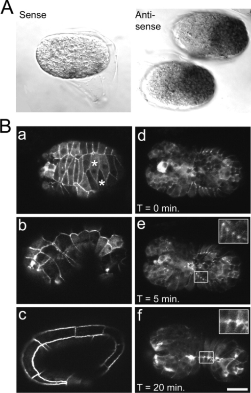 jac-1 is expressed in the early epidermis and JAC-1–GFP localizes to epidermal cell borders during morphogenesis. (A) Representative images from in situ hybridization with a control jac-1 sense probe (left) and jac-1 antisense probe (right). (B) Confocal images of JAC-1–GFP expression. (a) Dorsal view showing JAC-1–GFP localization during dorsal intercalation (two interdigitating cells are marked with asterisks). (b and c) Lateral views showing JAC-1–GFP localization during elongation. (d–f) Time course of an embryo undergoing ventral enclosure. Bar, 10 μm.