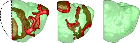 Ablation of the mother rotor spiral in the LV (posterior view). The black dashed line denotes the portion of the ventricles that was removed. The first snapshot (left) is at ∼3 s of simulation time (i.e., the time when part of the LV was removed), the second snapshot (middle) is at 3.3 s, and the third snapshot (right) is at 3.5 s, after which there was no longer any wave activity.