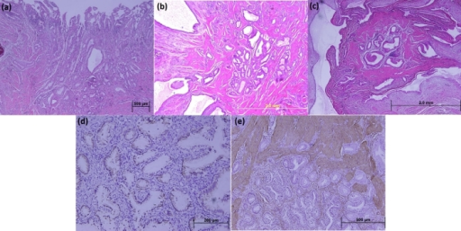 Photomicrographs of gallbladder sections: (a) Proliferation of the mucosal glandular structures inceptiving from the mucosa of gallbladder; (b) Hyperplasia of the smooth muscle cells among them (H&E stains; original magnifications, x40); (c) Aggregation of cystically dilated glandular structures surrounded by a hiperplasic smooth muscle tissu evaluate columnar without nuclear atypia in glandular epithelium. The glandular structures are lined by an unistratified epithelium at high magnification (H&E stain; original magnification, x100); (d) Immunohistochemical stains show the glandular columnar cells to be positive for cytokeratin-7 expression (original magnification, x200); (e) Immunohistochemical stains show the muscularis layer to be positive for alpha-smooth muscle actin expression ( original magnification, x100).