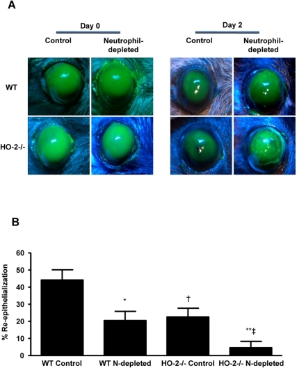 Effect of neutrophil depletion on wound healing.(A) Representative images of fluorescein-stained corneas at day 0 and day 2 after injury in control and neutrophil (N)-depleted WT and HO-2−/− mice. (B) Wound closure as percent change from day 0. Results are mean ± SE; n = 5–7; *p<0.005 from control WT mice; **p<0.005 from control HO-2−/− mice; † p<0.01 from control WT mice; ‡ p<0.005 from neutrophil-depleted WT mice.