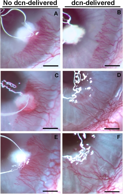 Representative stereomicroscopy images showing VEGF-induced CNV in no decorin-delivered control (A, C and E) and decorin-delivered (B, D and F) rabbit corneas.Rabbit eyes were imaged early (5 day, Panels A, B), mid (10 day, Panels C, D), and late (14 day, Panels E, F) stages after VEGF pellet implantation. The 100 µl AAV5 viral titer (5×1012 vg/ml) expressing no gene/gfp or decorin was topically applied onto the cornea after removing corneal epithelium for single application for 2 minutes. A statistically significant inhibition of neovascularization was observed at three tested early, mid and late stages of the CNV. Scale bar denotes 2 mm. dcn = decorin.