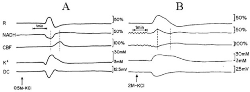 Analog tracings presenting the effect of CSD initiation during normoxia (A) and hypoxia (B). R – reflectance, NADH – mitochondrialNADH redox state; CBF– cerebral blood flow; K+e – corrected extracellular potassium concentration; DC – DC steady potential.The arrows indicate the moment of KCl solution application for induction of CSD wave. Dotted lines in 2A and 2B mark the simultaneousminimum and maximum responses in CBF and NADH during CSD.