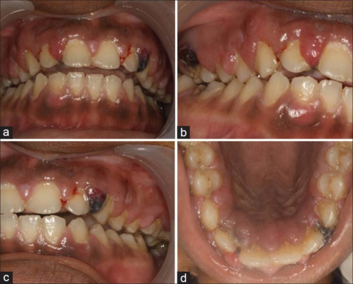Clinical photographs of patient (a-d) on 27th June 2011, exhibiting generalized gingival enlargement with localized necrotic and cyanotic areas