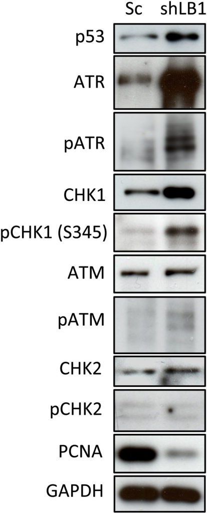 Activation of key signaling proteins that mediate early G1 arrest.Protein levels in silenced and control cells were detected by immunoblotting at day 3 after LB1 silencing. GAPDH served as a loading control. This experiment was repeated 4 times.