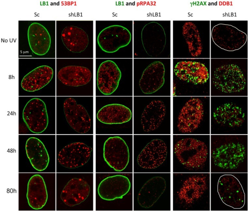 Silencing LB1 expression in U-2 OS cells dramatically delays detection and repair of DNA damage induced by UV.Silenced and control cells were irradiated with 20 J/m2 UV, fixed and stained at 8, 24, 48 and 80 hr with antibodies to LB1 (green) and 53BP1 (red); LB1 (green) and pRPA32 (red); and γH2AX (green) and DDB1 (red). No UV samples were from the same transfections. The borders of the nuclei were marked in white in the far right panels. Images of single representative nuclei are shown.