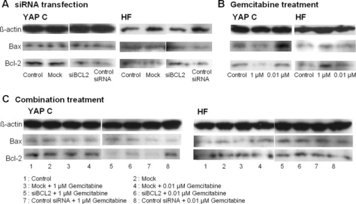 Expression of the bcl-2 protein determined by Western blotting. (A) siRNA transfection inhibited bcl-2 protein expression of YAP C but not in HF. (B) 1 μM Gemcitabine treatment tended to down-regulate bcl-2 protein expression in YAP C in comparison to 0.01 μM Gemcitabine treated YAPC cell lines or controls. (C) The combination treatments of siBCL2 and Gemcitabine lead to a pronounced down-regulation of bcl-2 protein in YAP C but not in HF cells.