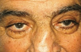 the exophthalmos periorbital oedema conjunctival hyperaemia disappeared after first cycle of therapy