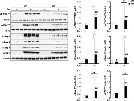 Regulation of cerulein-induced ER stress and apoptosis by TCPTP. Total pancreas lysates from control without (n = 9) and with (n = 12) cerulein and panc-TCPTP KO without (n = 7) and with (n = 9) cerulein were immunoblotted for pPERK and peIF2α and their respective unphosphorylated proteins, cleaved Caspases 8, 9 and 3, PARP and Tubulin as a loading control. Bar graphs represent normalized data for pPERK/PERK, peIF2α/eIF2α and Caspase 8, 9, 3 and PARP/Tubulin as means ± SEM. (*: P ≤ 0.05; **: P ≤ 0.01) indicates significant difference between saline- and cerulein-injected mice, and (#: P ≤ 0.05; ##: P ≤ 0.01) indicates significant difference between WT and KO mice.