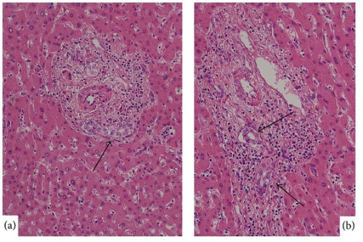 Atypical small bile duct lesion. (a) Small interlobular bile duct shows cellular and nuclear atypia. HE. (b) Small interlobular bile duct shows nuclear atypia and disturbed polarity. HE.