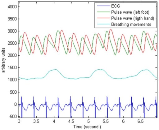 Raw photoplethysmography signals.These photoplethysmography traces show a delay between the recordings from the right hand and left foot in an infant with PDA.