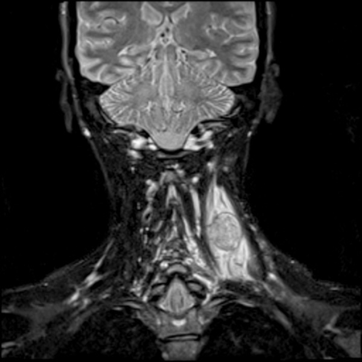 Coronal, T1-weighted image after administration of gadolinium contrast demonstrates marked enhancement within the lesion.