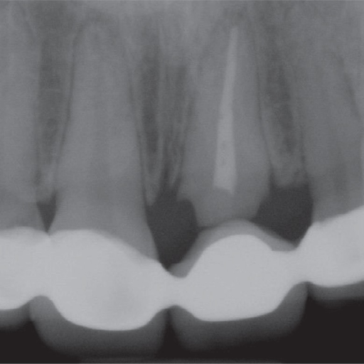 Periapical radiograph of the left central incisor.