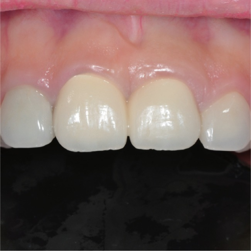 Labial aspect of the restoration at 24 months.