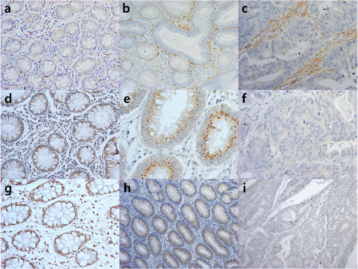 Immunohistochemical staining of adiponectin, AdipoR1, and AdipoR2. (a–c) Localization of adiponectin staining in normal colon tissue (a, ×200), advanced adenoma (b, ×200) and CRC (c, ×200) differed from spindle-shaped cells in the subepithelial area to a diffuse area in the lamina propria. (d–i) Staining for AdipoR1 (d, ×200) and AdipoR2 (g, ×200) was positive in the epithelium of normal colon tissues. AdipoR1 (e, ×400) and AdipoR2 (h, ×100) showed moderate staining intensities in the epithelial layer of advanced adenoma. In CRC, AdipoR1 (f, ×400) and AdipoR2 (i, ×100) showed weak or no staining.