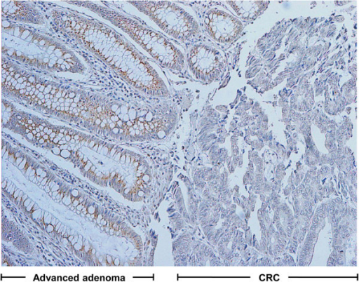 Representative examples of AdipoR1 immunohistochemical staining with carcinoma in situ arising from advanced adenoma (×100).