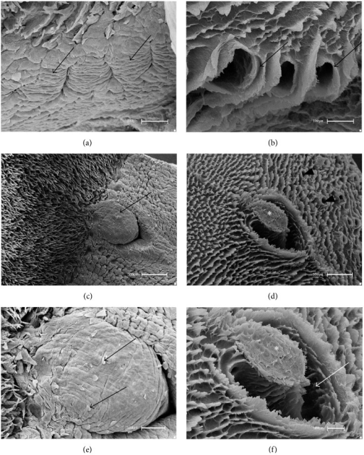 Scanning Electron Micrographsfoliate And Vallate Pap Open I