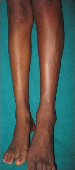 Engorged vein over lateral aspect of left leg along with hypertrophy of lower limb