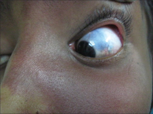 Bluish discoloration of sclera of left eye