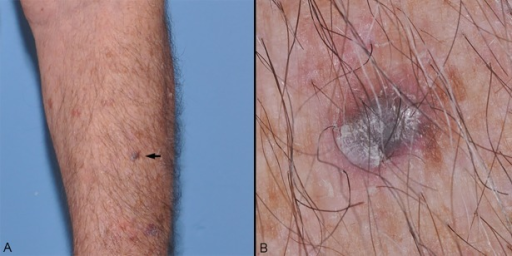 (A) Clinical overview image of a new 8 mm bluish nodule (black arrow). (B) Close-up image reveals a pink halo and peripheral tan pigmentation. (Copyright: ©2015 Mancebo et al.)