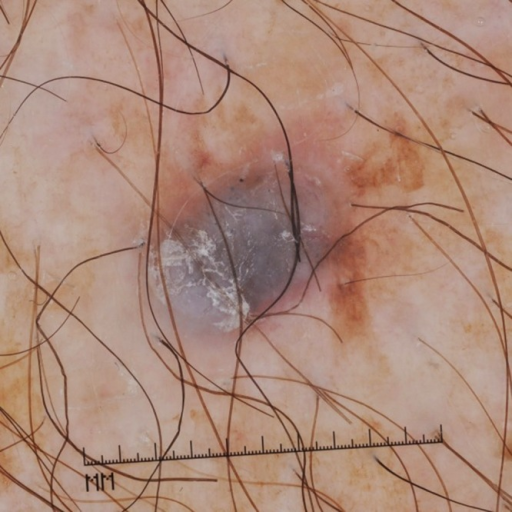 Nonpolarized contact dermoscopic image showing central blue-white veil, scale, sparse atypical blue and black dots focally at the periphery, and a surrounding pink vascular blush with irregular tan-brown pigmentation. (Copyright: ©2015 Mancebo et al.)