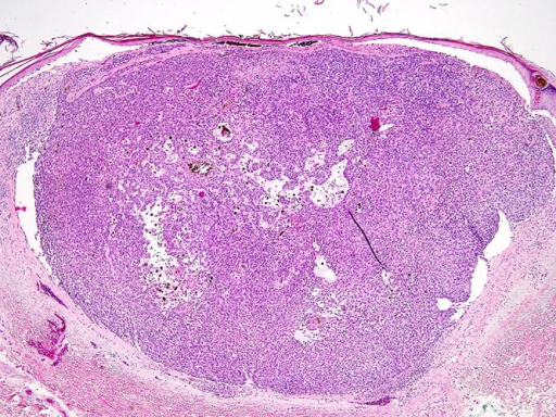 Histopathologic examination revealed a nodular basaloid tumor island budding from the epidermis, stromal retraction, and small cystic spaces filled with mucin and pigment (hematoxylin-eosin, ×40). (Copyright: ©2015 Mancebo et al.)