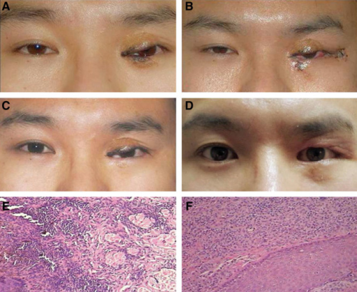 A, A divided nevus in a 28-year-old man (patient 2), occupying medial eyelids and lacrimal puncta. Extra attention should be paid to the patient because of recurrence after a previous tumorectomy and free skin grafting 10 years ago. B, Five days after the first-stage surgery. C, A photograph before the second-stage surgery and 11 months after the first-stage surgery. D, Three months after the second-stage surgery. E and F, The specimens of 2 surgeries both indicated intradermal type (original magnification ×10).