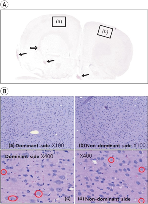Hematoxylin-eosin staining shows the injured area in the left and right hemispheres. In (A), focal hemorrhage (arrows) in the cerebral cortex, deep white matter, base, and necrosis with hygroma (void arrow) can be observed because of diffuse cerebral contusion. (B) shows lots of dead cells that have no nucleus throughout the brain parenchyme in the left (a, ×100) and the right (b, ×100) sides. Red circles indicate the nuclear vacuolation in the brain cell after traumatic brain injury in the dominant (c, ×400) and the non-dominant (d, ×400) sides of the cerebral hemisphere.