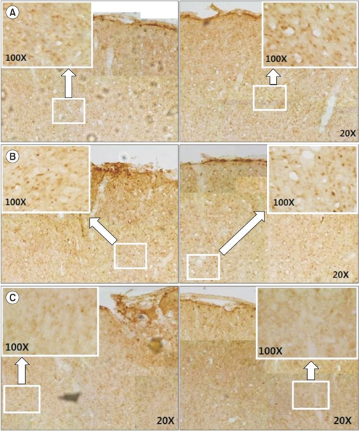 Immunohistochemistry staining for c-Fos protein in the cerebral cortex of rats with diffuse traumatic brain injuries. The left (stimulation) and the right (non-stimulation) cortex in the ES group (A). The dominant and non-dominant cerebral cortex in the MS group (B) and in the sham group (C). In (A), note the increase in c-Fos expression on both sides, although the increase is more pronounced on the stimulated side, In (B), note the increase in c-Fos expression over the entire cerebral cortex, with the same level of expression on both sides. In (C), there is c-Fos expression on both sides, with much lower expression than in the ES group (A) and the MS group (B). ES, electrical stimulation; MS, magnetic stimulation.
